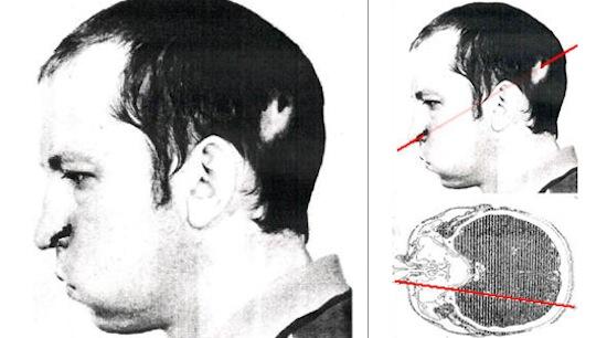13 июля 1987-го года учёный А. П. Бугорский сунул голову в работающий ускоритель частиц