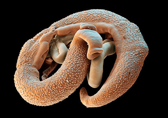 черви в теле человека фото