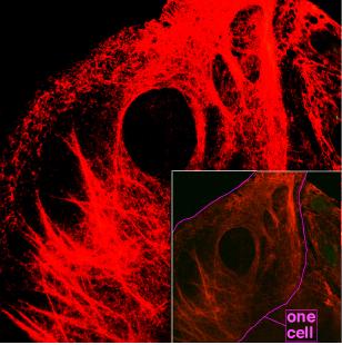Микроскопическое изображение нитей кератина внутри клетки