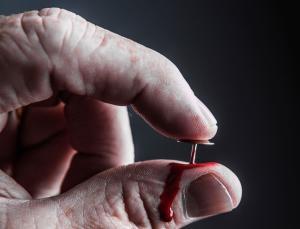 «Субъект-1» неспособен испытывать боль