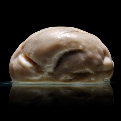 Самый необычный человеческий мозг из известных науке