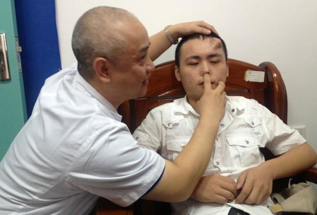 Китайцу вырастили нос на лбу