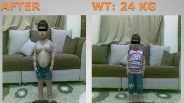 2-летний мальчик — самый молодой пациент, которому сделали липосакцию