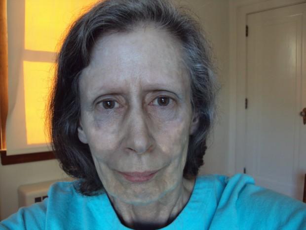 Женщина 60 лет прожила с серебряной кожей