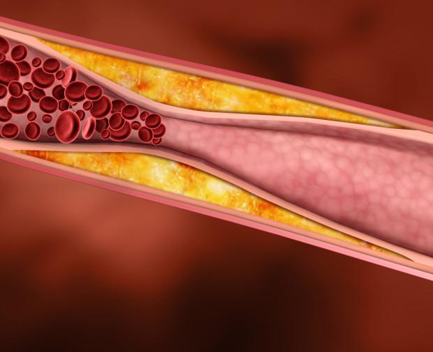 Чем опасен повышенный холестерин и почему за его уровнем надо следить