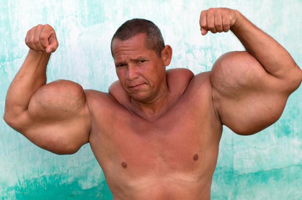 Обладатель самых больших бицепсов в Бразилии накачал мышцы жиром и спиртом