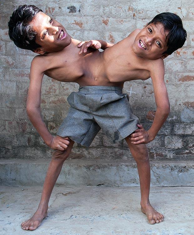 Сиамские близнецы отказались разделяться