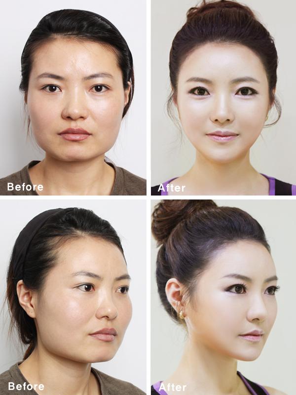 В ЮжнойКорее пластические хирурги меняют лица пациентов до полной неузнаваемости