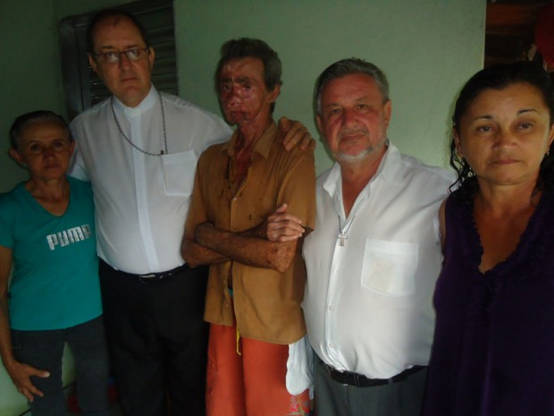 Жители бразильской деревнив буквальном смысле тают под солнцем
