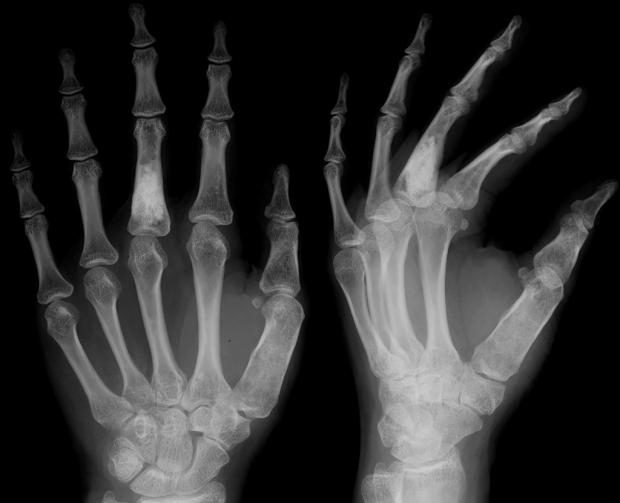 Лучи рентгеновские