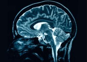 Читайте также: «8 способов обмануть свой мозг»