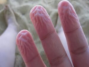 Читайте также: «Пальцы сморщиваются при длительном контакте с водой для того, чтобы лучше удерживать мокрые и скользкие предметы»