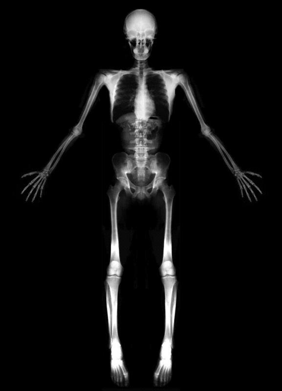 Скелет фото