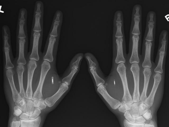 10 поразительных фактов о биохакинге и биохакерах (11 фото)