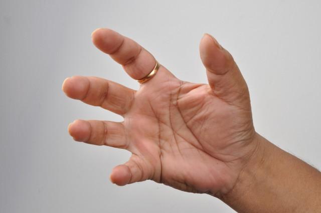 Почему у человека пять пальцев