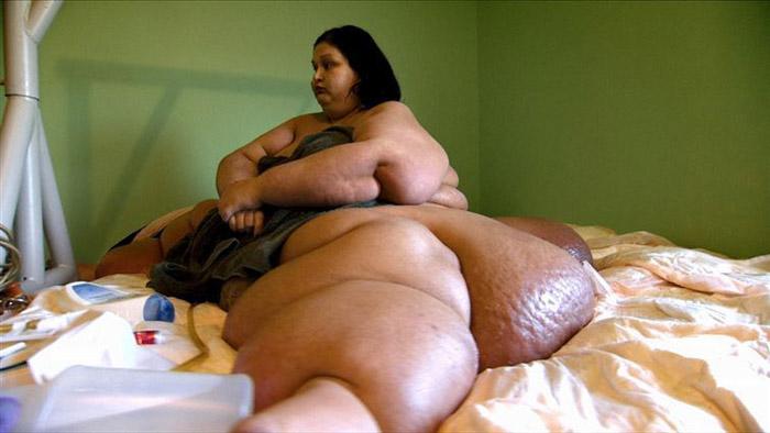 Похудеть на 80% от своего веса: 7 фактов о чудесном преображении 470-килограммовой Майры Розалис (12 фото)