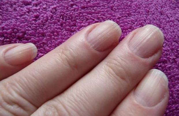 Что означают полоски на ногтях рук
