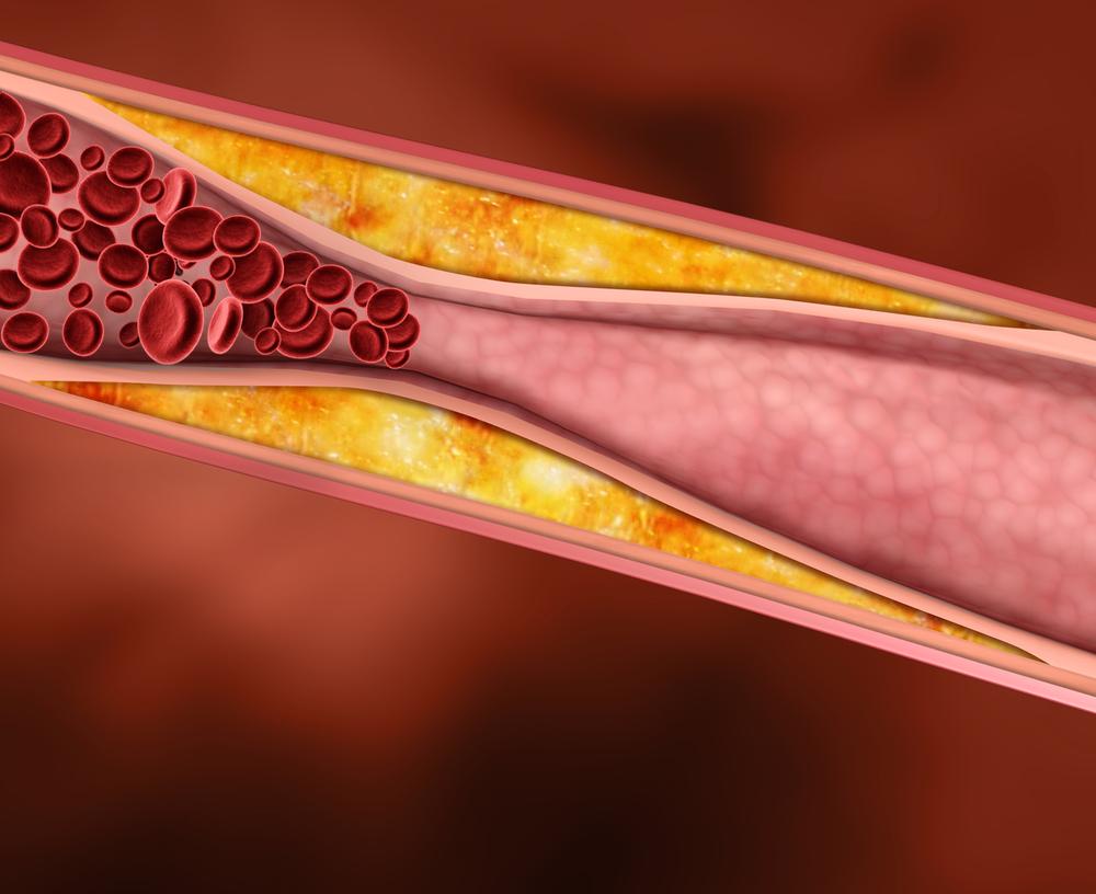 понизить холестерин без статинов