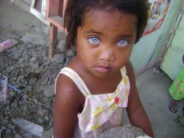 Чудо природы: 15 темнокожих малышей с голубыми глазами