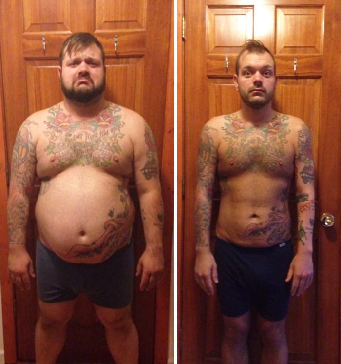 Сильно похудевшие люди до и после кожа