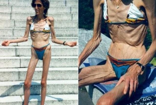 Фото 22 - целлюлит великий всемирный обман эксперт разнёс в пух и прах бред который женщинам впаривают рекламщики