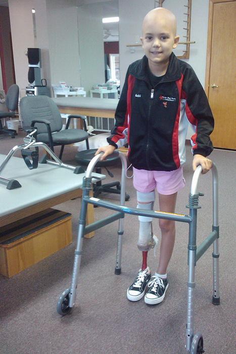 Фото -балерина без ноги 15 летняя девушка победила рак на пути к своей мечте